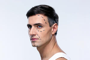 Silicon Valley's Male Tech Workers are Using Cosmetic Surgery to Get Ahead